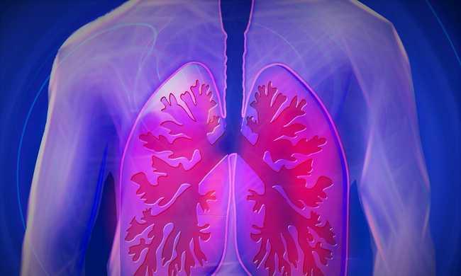 Nálunk hal meg a legtöbb ember tüdőrákban, de más daganatokkal is harcolunk