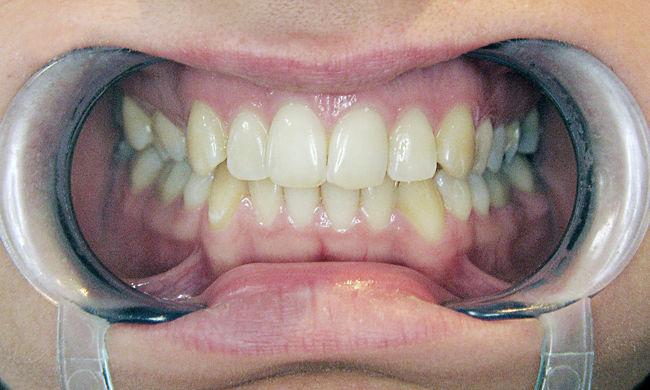 A fogzománc mintájára készítettek karcálló anyagot