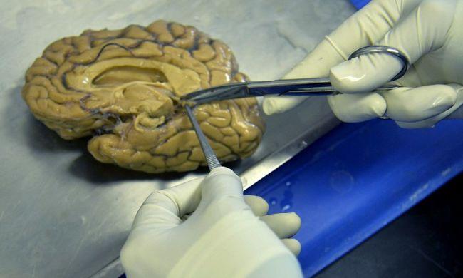 Orvosi múzeumtól lopott agyakat, majd eladta az interneten