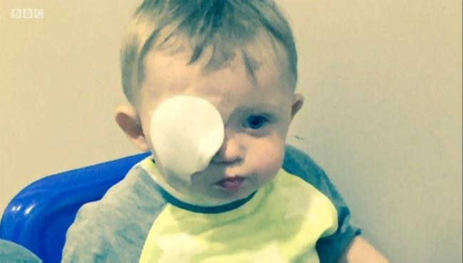 Kettévágta a kisfiú szemét az eltévedt drón