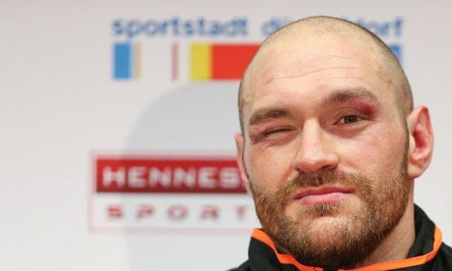 Fogadott rá, hogy legyőzi Klicskót: milliókat nyert