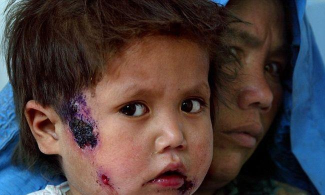 Húsevő baktérium pusztít Szíriában az Iszlám Állam miatt
