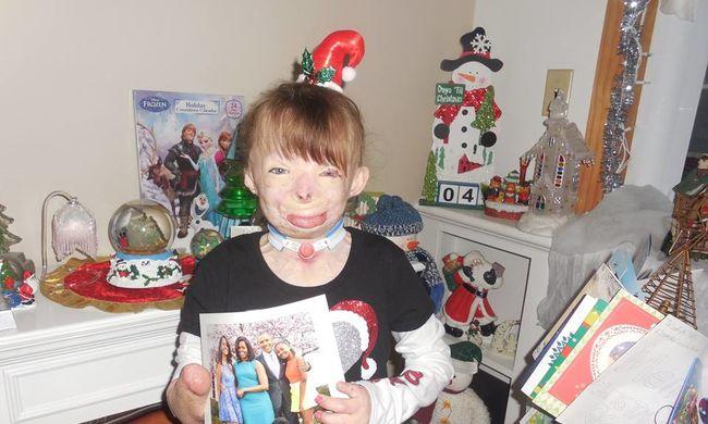 Hihetetlen Facebook-kampány: több mint egymillió karácsonyi lapot kapott a kislány