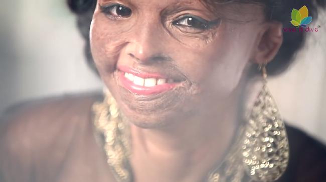 Savtámadás túlélője lett az indiai divatmárka arca