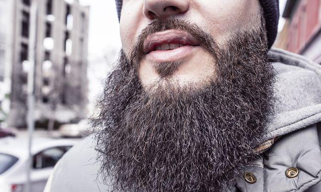 Hosszú szakálla miatt rúgták ki az orvost