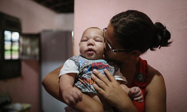 Egyetlen hét alatt 14 százalékkal  több baba született kóros kisfejűséggel