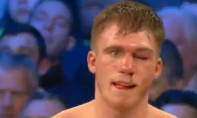 Kómában a bokszoló, teljesen szétverték a szemét