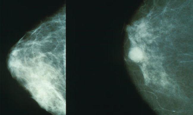 A férfiaknál agresszívabb a mellrák, de túlélhetik