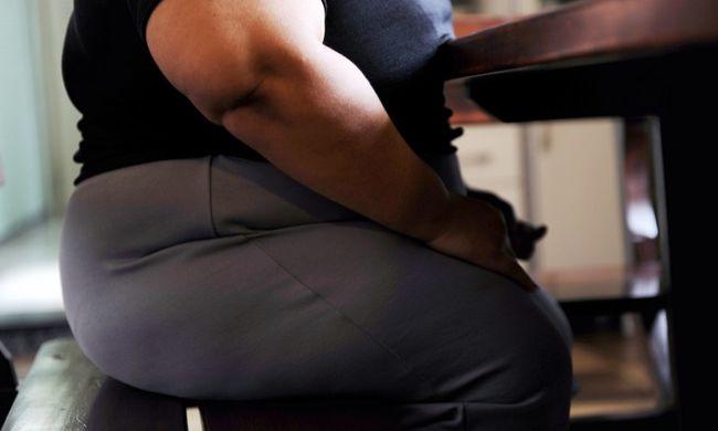 Kövérek vagyunk: a magyarok közel háromnegyede túlsúlyos