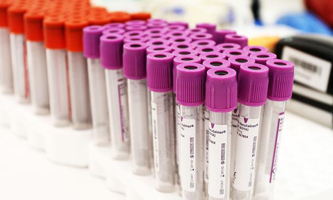 58 ember vérére volt szükség, hogy életben tartsák a megkéselt férfit