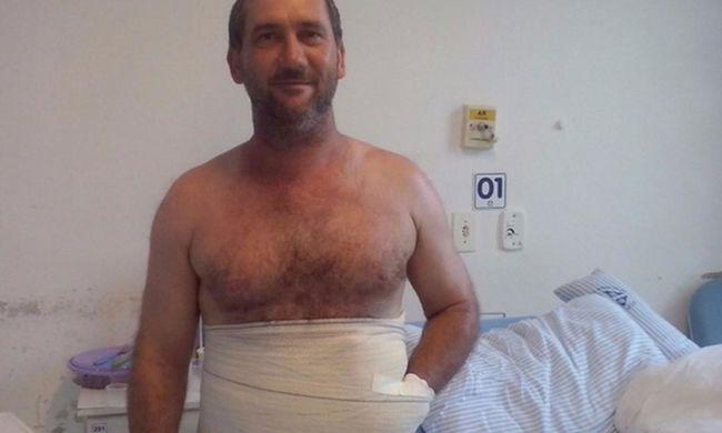 Belevarrta a kezét a hasába az orvos, hogy megmentse az amputációtól