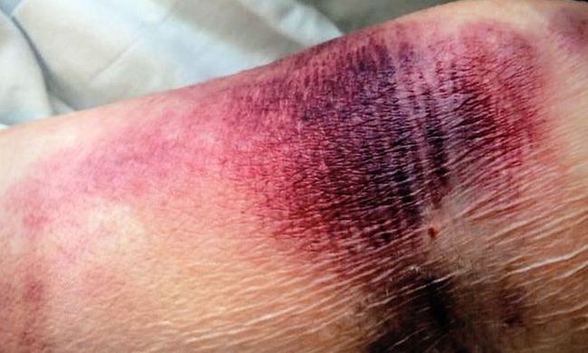 Rejtélyes körülmények között halt meg a kórházban a beteg, furcsa folt jelent meg a karján