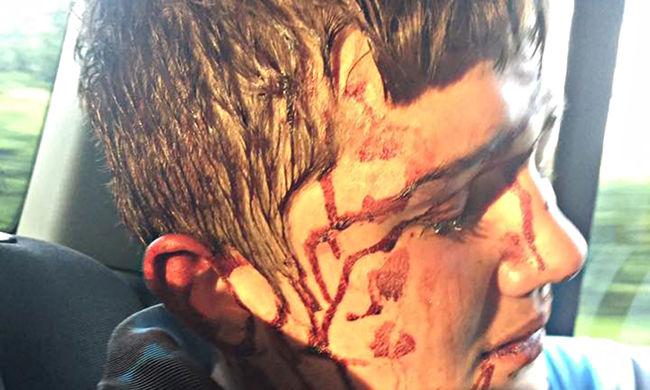 Véresre vert fiáról posztolt képet a Facebookon egy anya, így keresi a tetteseket