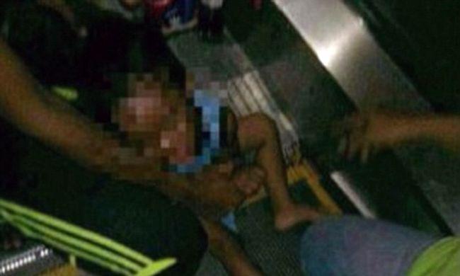 Sokkoló képek: levágta egy 3 éves kisfiú péniszét a mozgólépcső