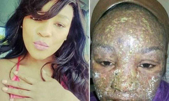 Rettenetes mellékhatás: majdnem lerohadt a nő arca a gyógyszertől