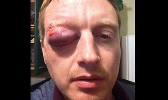 Tojással dobta meg a sofőr a biciklist, súlyosan megsérült