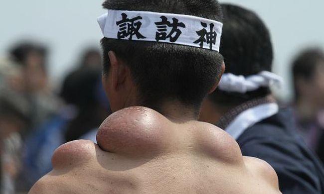 Ahelyett, hogy elrejtenék, büszkén viselik ezeket a púpokat a japánok