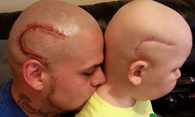 Szívszorító fotó: ezt tette agydaganatos kisfiáért egy apa