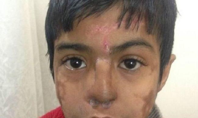 A gyerek homlokán növesztettek új orrot