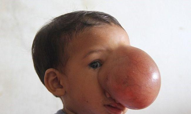 Elképesztő daganat nőtt a kislány arcára