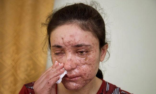 Szexrabszolga voltam: részleteket árult el az Iszlám Állam fogságából szabadult lány