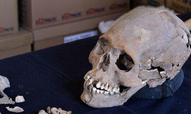 Évekig szorították a koponyáját, foga helyére zöld követ raktak