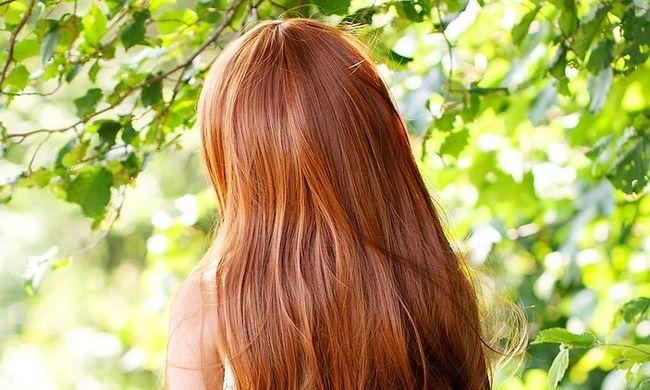 Ezért kell jobban vigyáznia, ha vörös a haja