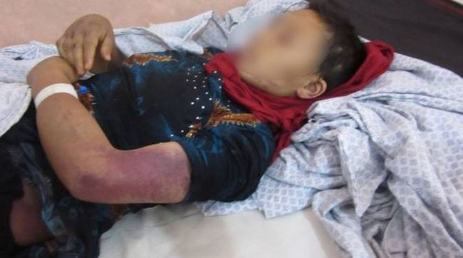 Terhes feleségét csonkította meg a férfi