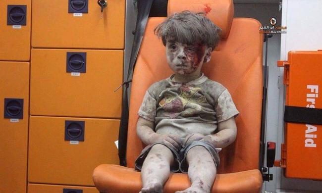 A háború borzalmas arca: több ezer kisgyerek válik áldozattá