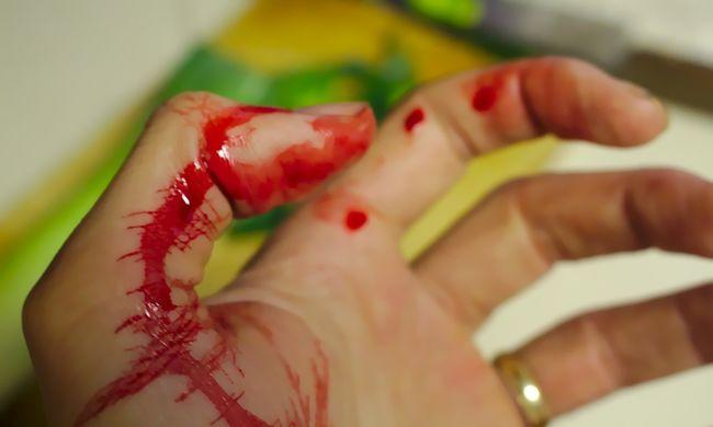 Rémisztő: levágott kezet találtak egy budapesti albérletben