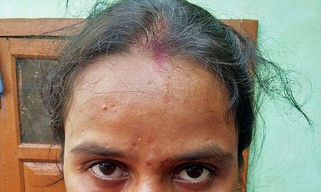 Levágta felesége orrát, majd elrohant