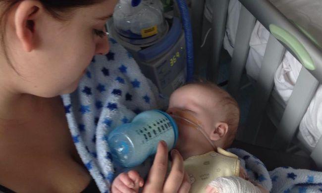 Ritka betegség: szem nélkül született a kisbaba