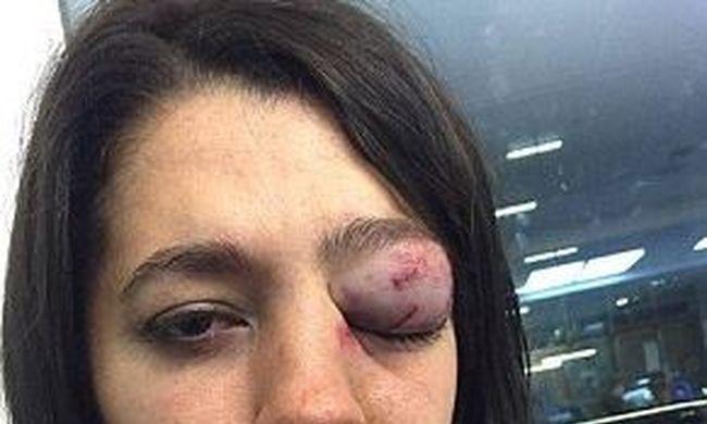 A cipő sarkával verték ki egy nő szemét a bárban
