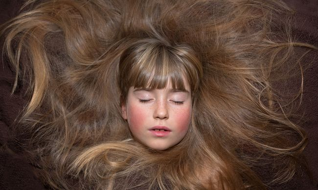 Állandóan a haját ette - 15 centis gombócot operáltak ki a nőből