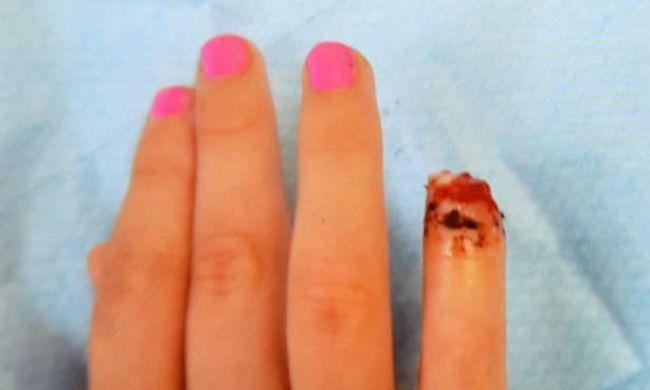 Szörnyű baleset érte a kislányt: boltajtó vágta le ujját