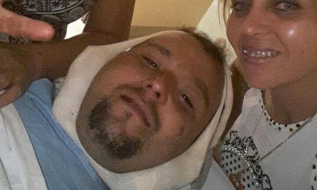 Szörnyű baleset: teljesen átfúródott a férfi fején a szigony