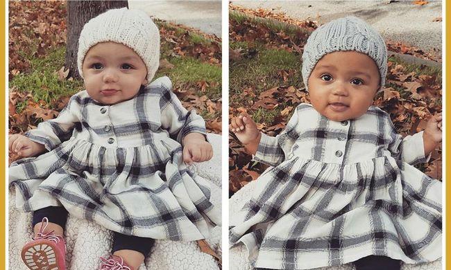 Csoda: különböző bőrszínű ikerbabákat szült az anya - fotó