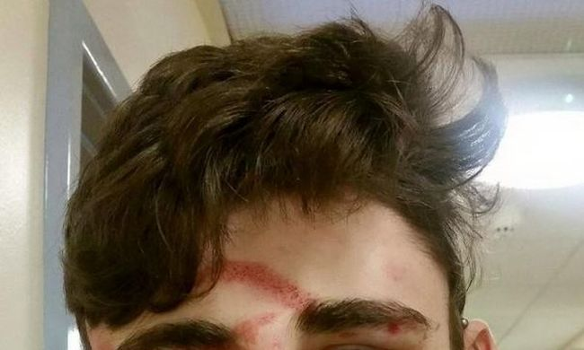 Vérben fürdött az iskola: 11 éves diákok verték össze a fiút