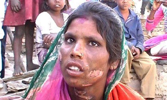 Tűzzel jelölte meg felesége arcát és nemi szervét, mert a nő felvette a telefont