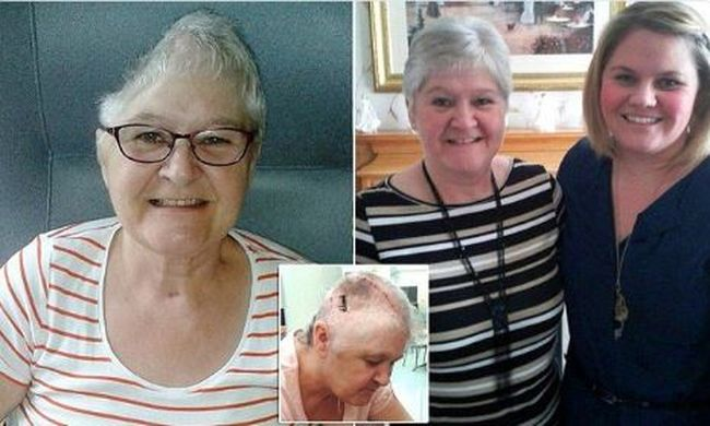 Busz gázolta el az asszonyt: elvesztette fél koponyáját
