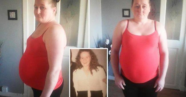 """""""Széklettel vagyok terhes"""" - az édesanya hasa óriásira nőtt ritka betegsége miatt"""