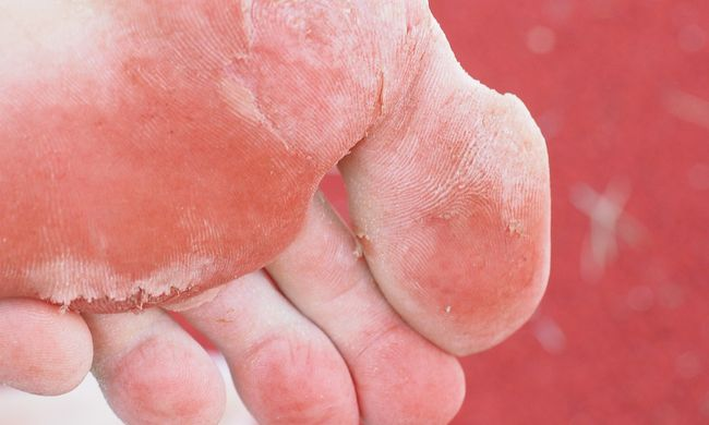 Emberi lábat találtak a tóban, az eltűnt nőé lehet