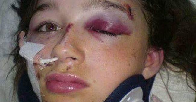 Mentőhelikopter szállt le: hátizsákja majdnem megölte a 13 éves lányt