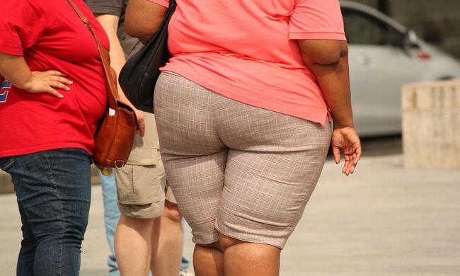 """Kiderült, csak mítosz volt a """"kövér, de fitt"""" ember"""