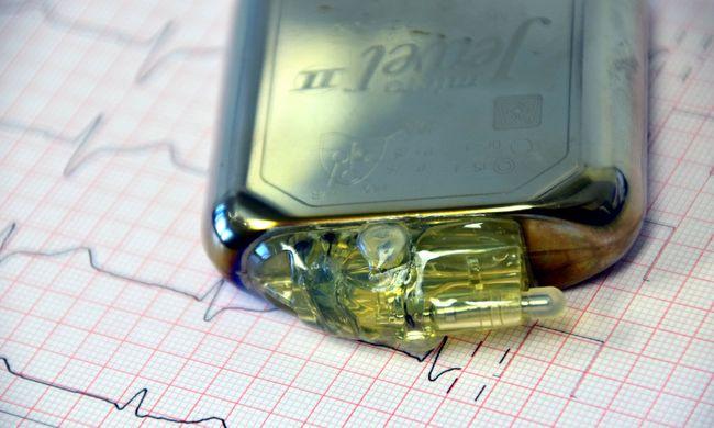 Áttörést értek el a kutatók, ez a pacemaker a szívverés energiájával működik