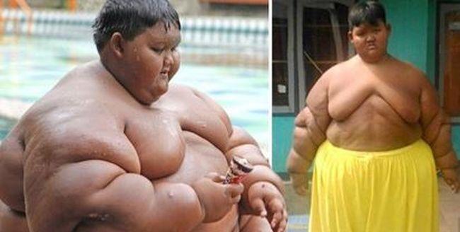 11 éves létére majdnem 200 kiló volt a világ legkövérebb gyereke