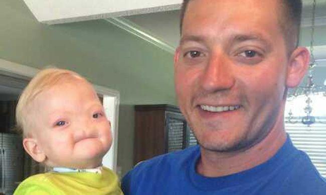 Kétévesen elhunyt az orr nélkül született szőke kisfiú