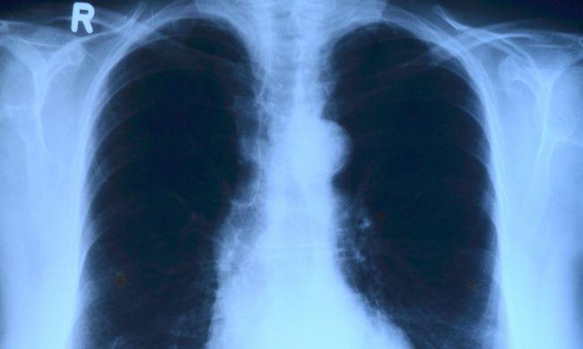 Folyamatosan életveszélyben van a fiatal Anna, mégsem kaphat új tüdőt