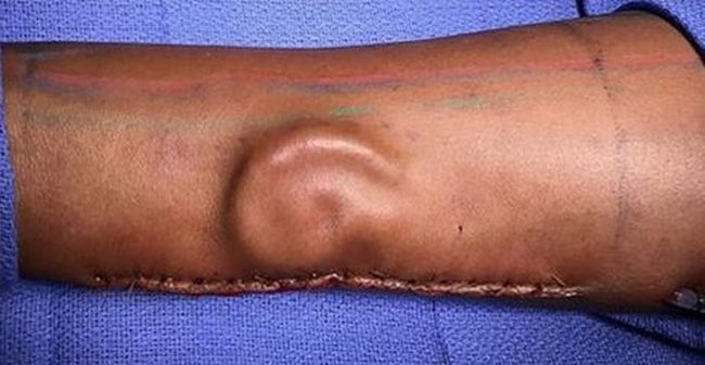 Elképesztő gyógyítás: egy katona kezében növesztettek emberi fület