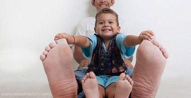 Betegsége miatt lett ő a világ legnagyobb lábon élő embere, 68-as méretű cipőt kapott